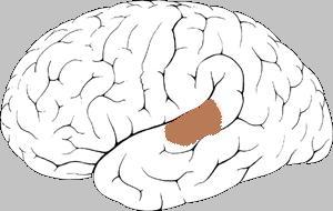 Stimmen hören auch bei Nicht-Schizophrenen
