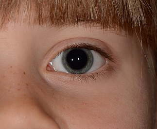 auge-pupille-weit