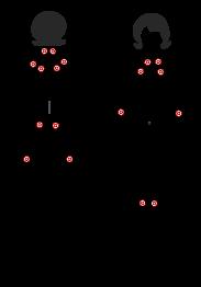 Ursachen von Fibromyalgie: Small-Fiber Polyneuropathie
