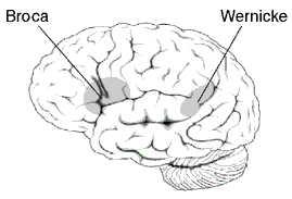 Fasciculus arcuatus Gehirnanomalie