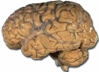 Schizophrenie: Gehirnschäden durch Antipsychotika