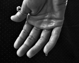 hyperhidrose-schweiss-hand