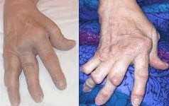 Rheumatoide Arthritis und Depressionen
