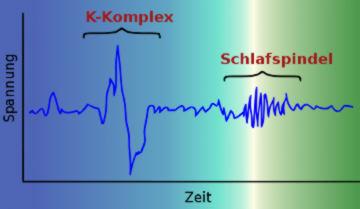 EEG mit Schlafspindel